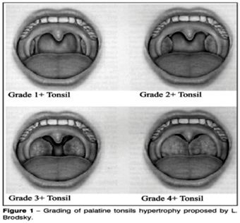 evaluating tonsils air hole dental treatment
