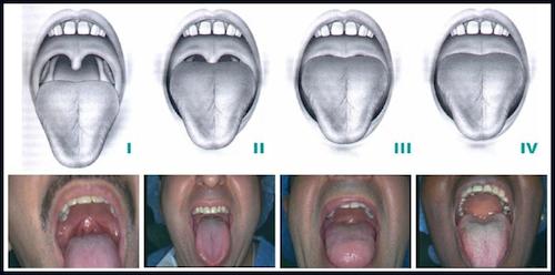 mallampati scoring for palate uvula fauces pillars