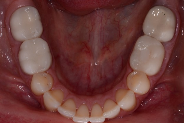 Considerations for an appropriate dental treatment plan