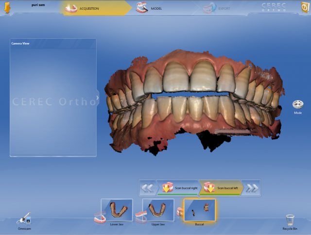 Another example of CEREC Ortho's digital occlusion