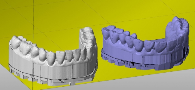Working with CEREC Ortho's digital occlusion