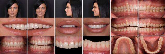 Facially Generated Treatment Plan photos
