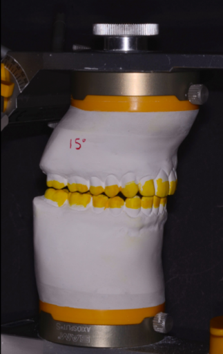 Facially Generated Treatment Plan cast