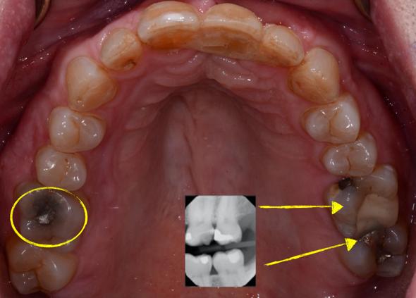 Facially Generated Treatment Plan photo