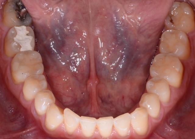 temporized broken tooth