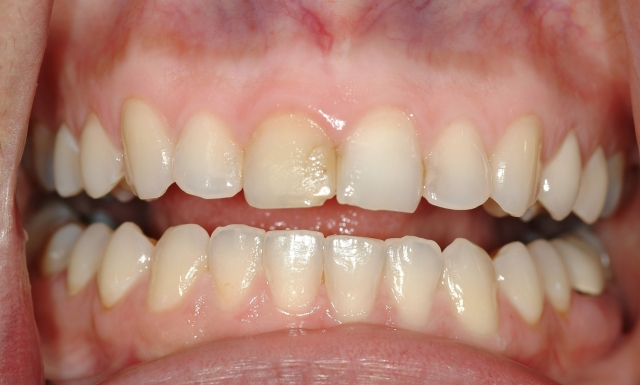 composite on chipped tooth