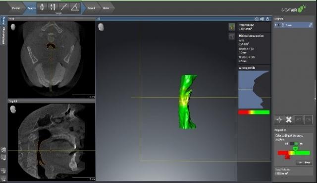 digital records for mandibular advancement devices