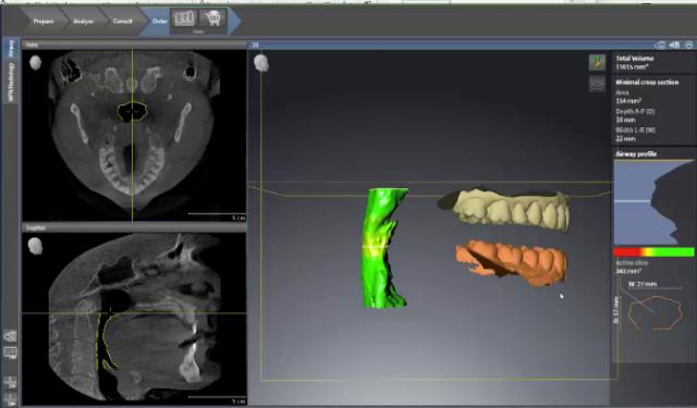 mandibular advancement device planning