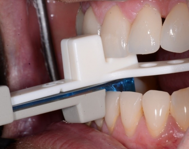 taking record for mandibular advancement device