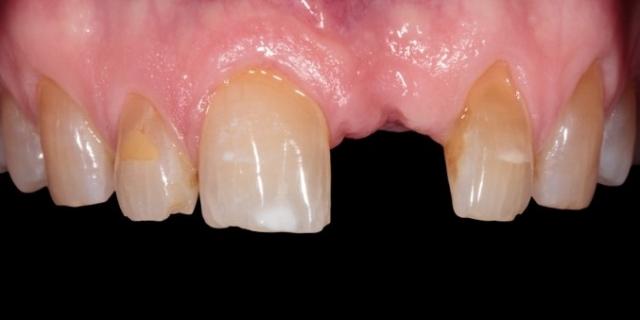 tissue development lead image 1