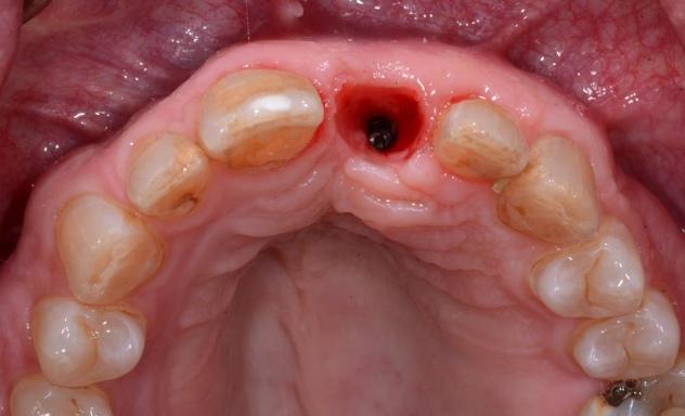 tissue development figure 8