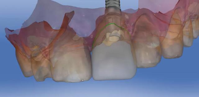 tissue development figure 14