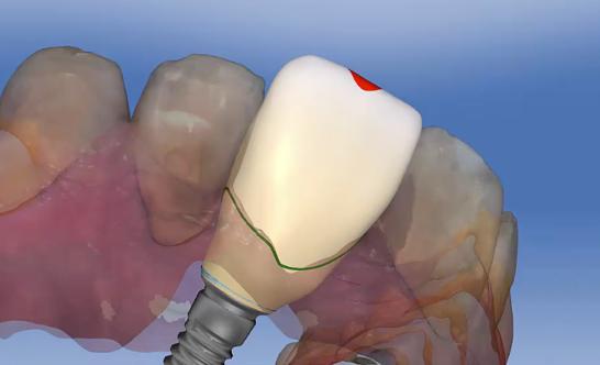 tissue development lead image 2