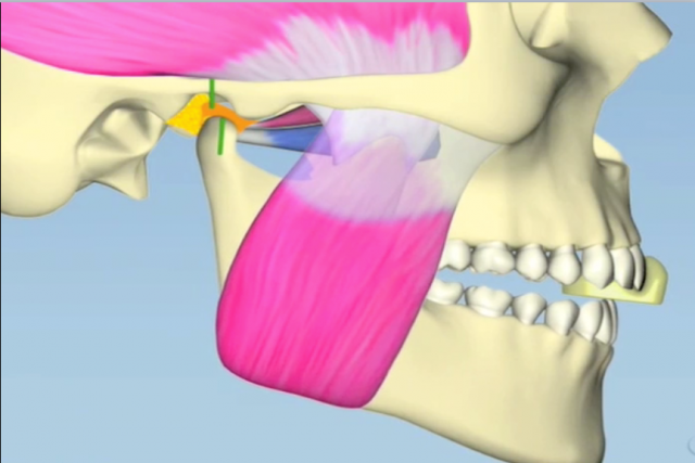 digital anterior bite plane figure 1