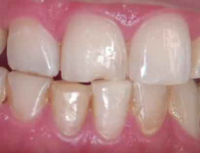 Esthetic anterior composite Figure 1