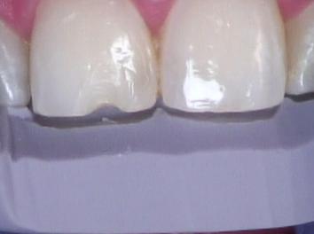 Esthetic anterior composite Figure 3