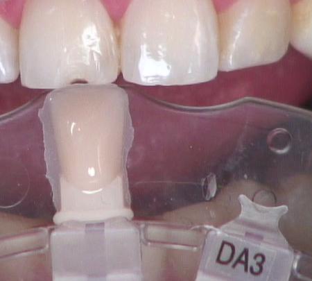 Esthetic anterior composite Figure 5
