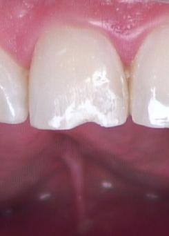 Esthetic anterior composite Figure 10