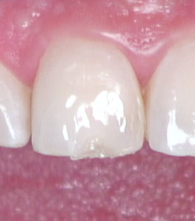 Esthetic anterior composite Figure 12