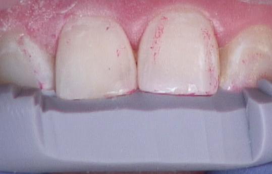 Esthetic anterior composite Figure 20