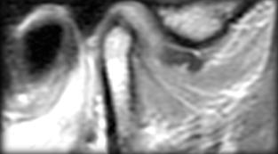 tmd diagnosis image 1