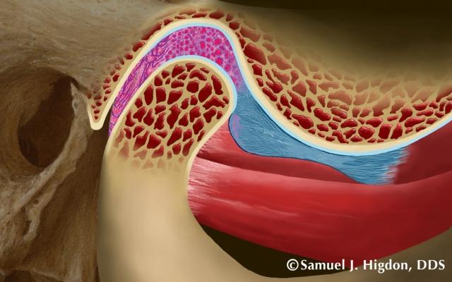 tmd diagnosis image 2