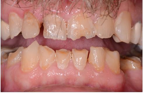 dental sleep exam figure 2