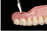 denture relining figure 3