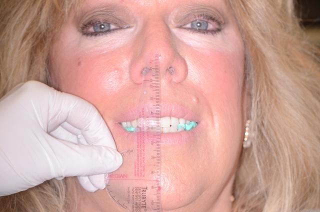 relining dentures figure 9