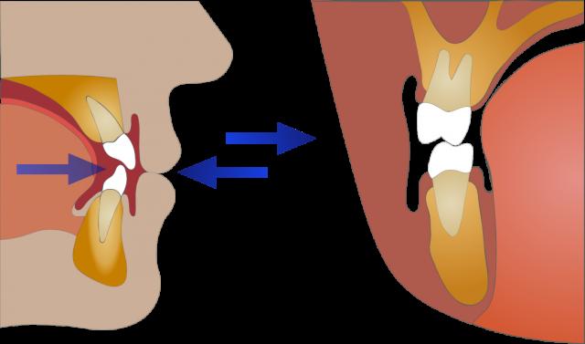 adolescent jaw growth development