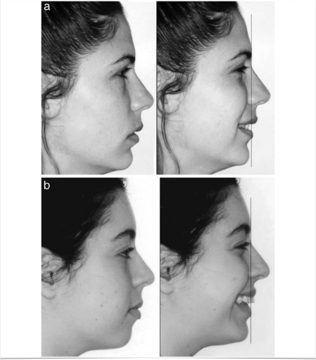 facial signs of central incisor position
