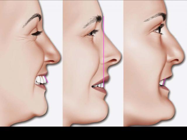 proclined retroclined teeth