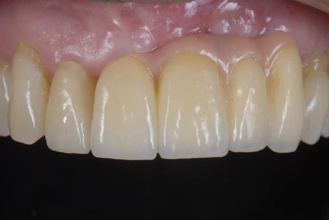 understanding dental risk