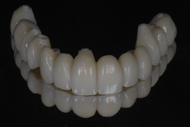 contingency during dental treatment planning