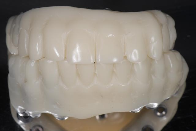 prosthesis mold