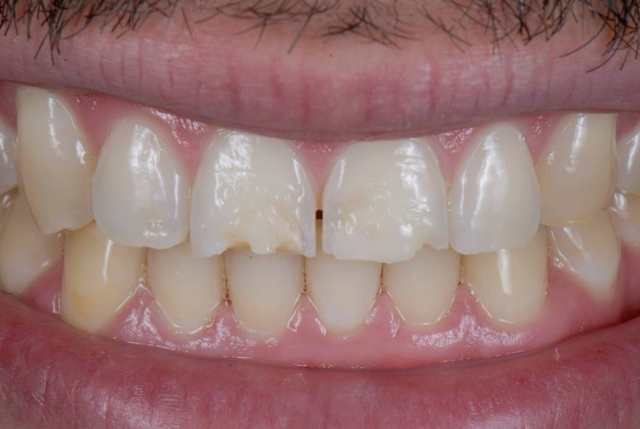 tooth erosion causes