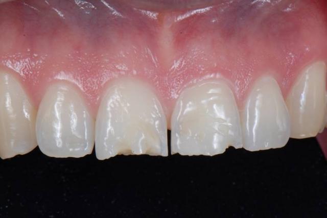 extrinsic dental erosion