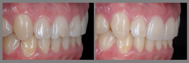 extrinsic tooth erosion treatment diagnosis