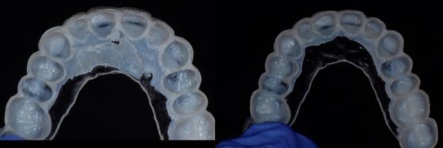 thermoplastic material dentistry veneer