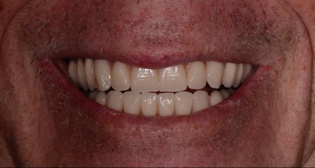 inclination of maxillary central incisor