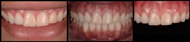 dental communication with bulimic patients