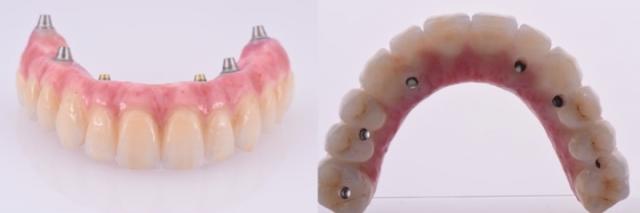 metal ceramics prosthesis