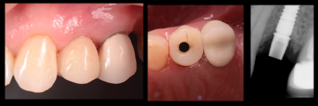 full center provisional implant supported restoration