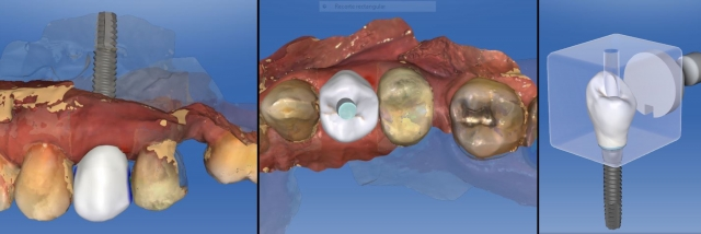 radiographic implant placement