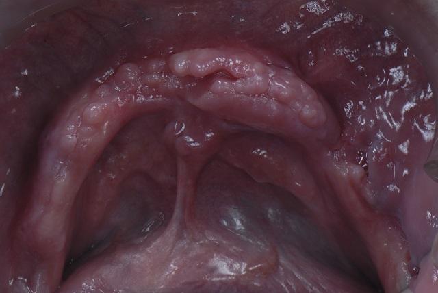 edentulous mandibular ridge occlusion