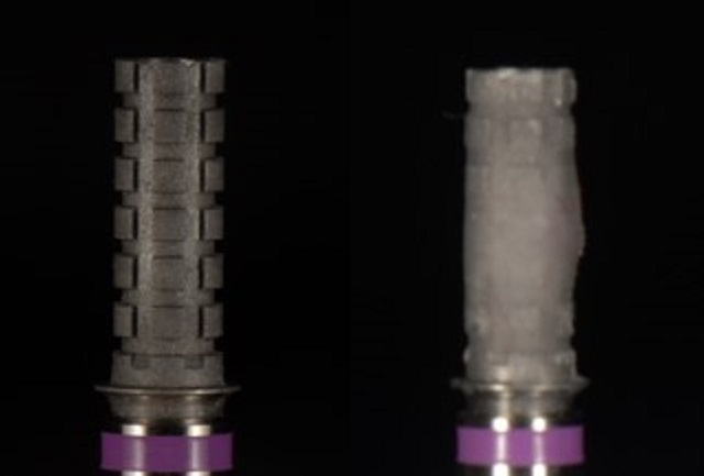 temporary cylinders PMMA