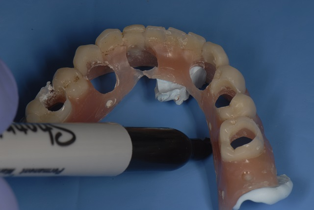 denture rubber dam