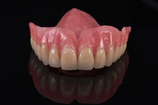 digital denture design