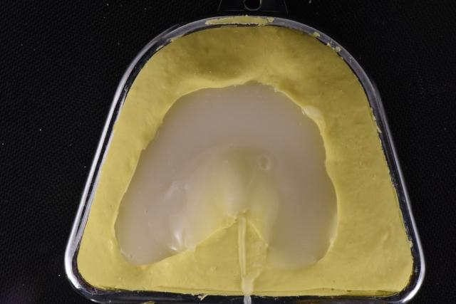 denture duplication process