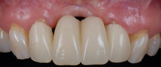 improve dental case acceptance figure 1